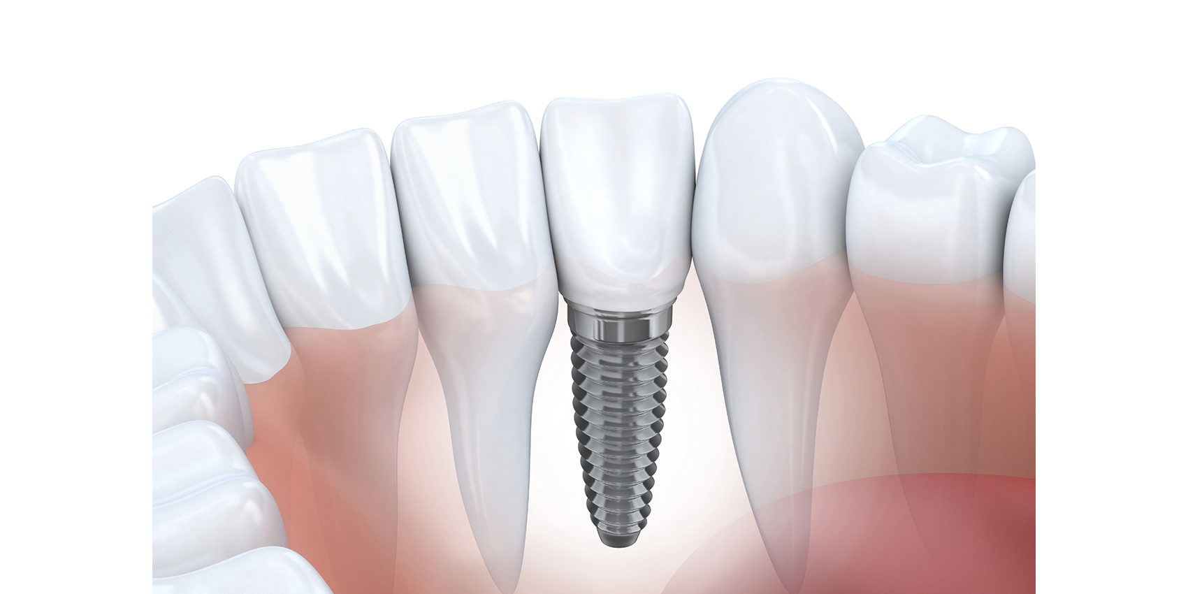 Implant dentaire : Comment s'y habituer ?