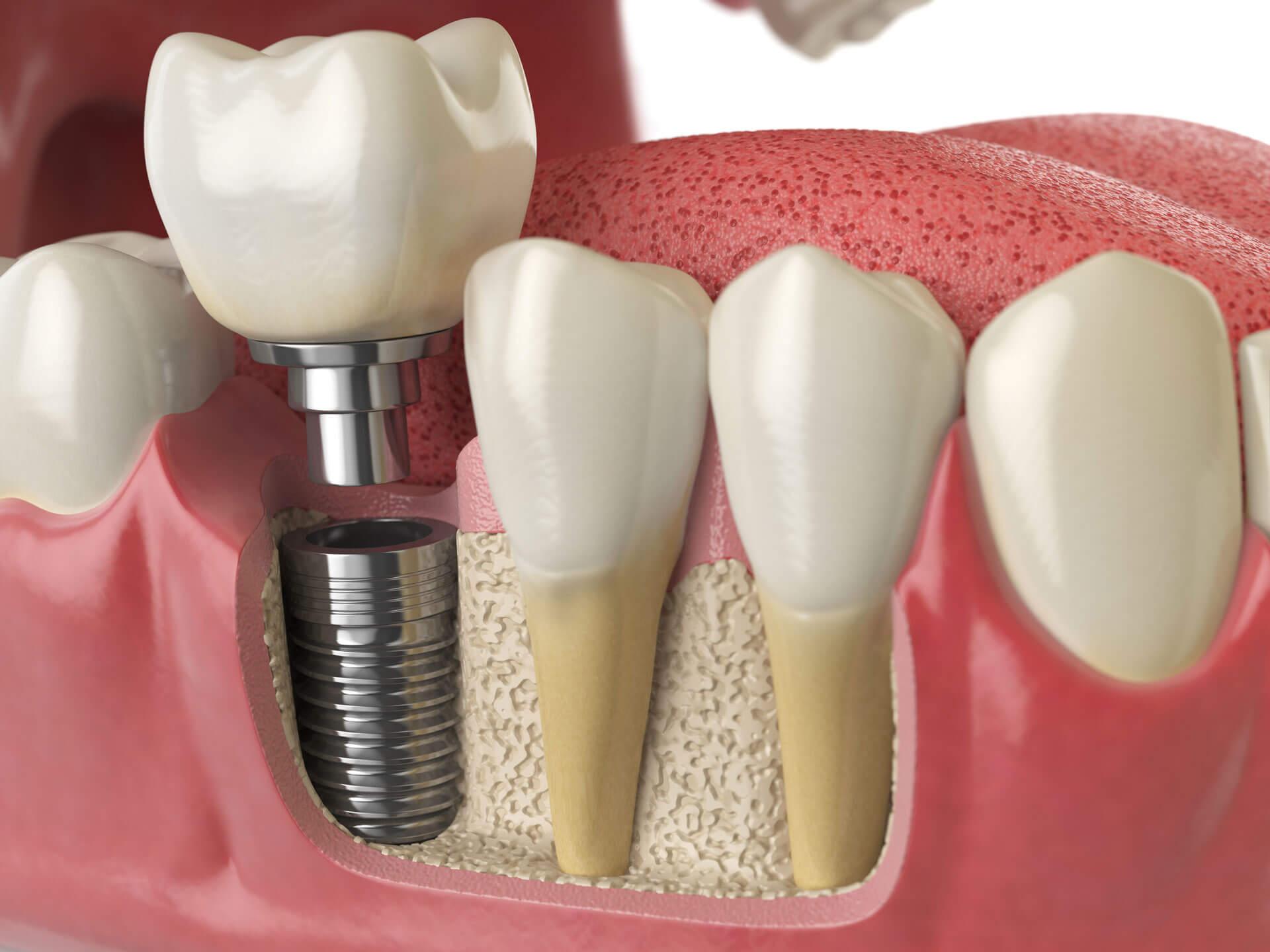 Implant dentaire : L'implant est-il une prothèse ?