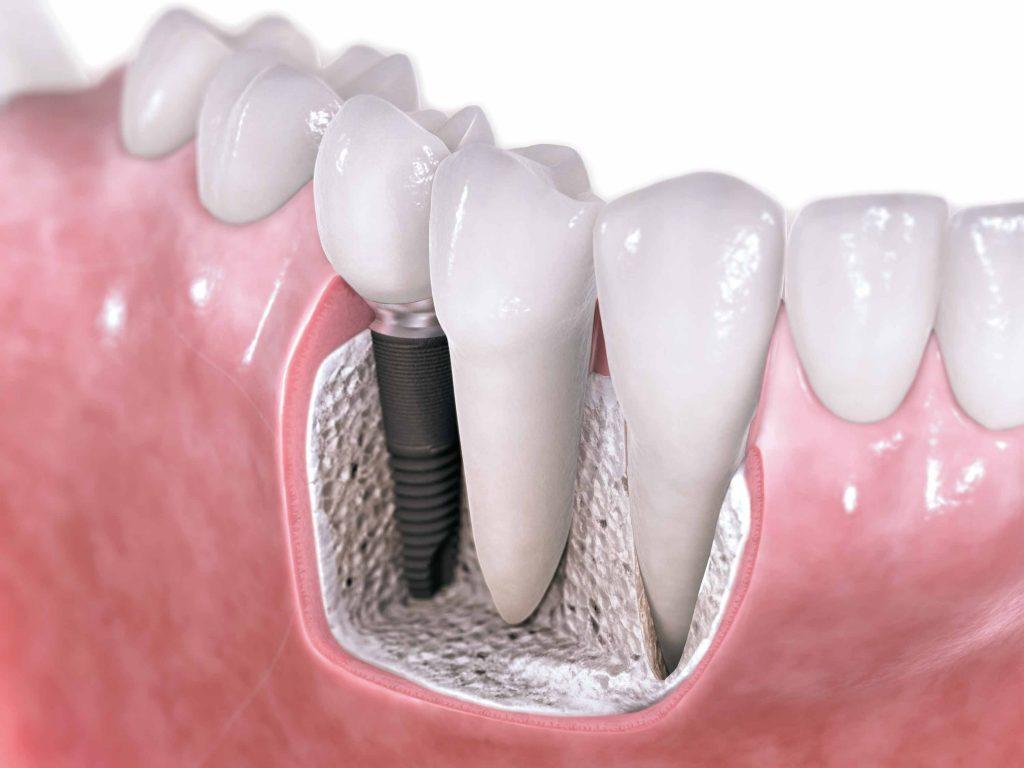 Implant dentaire : un implant efficace ?